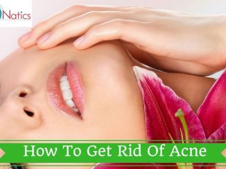 20 Ways On How To Get Rid Of Acne Naturally (AND FAST)